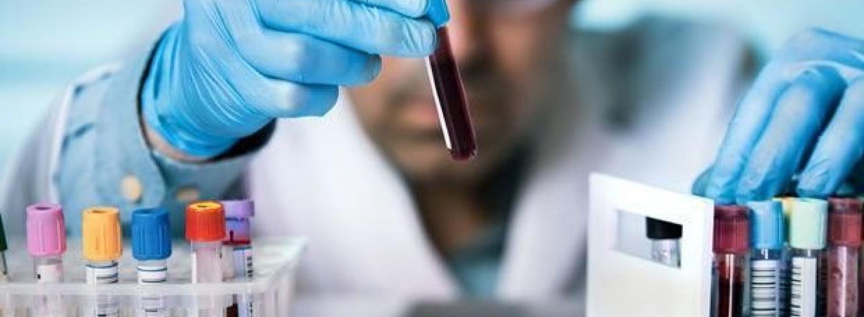 Українців масово тестуватимуть на наявність антитіл до коронавірусу