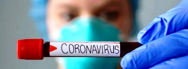 В Луганській області лабораторно підтверджено 16 нових випадків COVID-19
