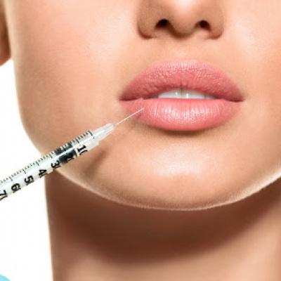 Після процедури збільшення губ вуста дівчини стали схожі на дупу бабуїна